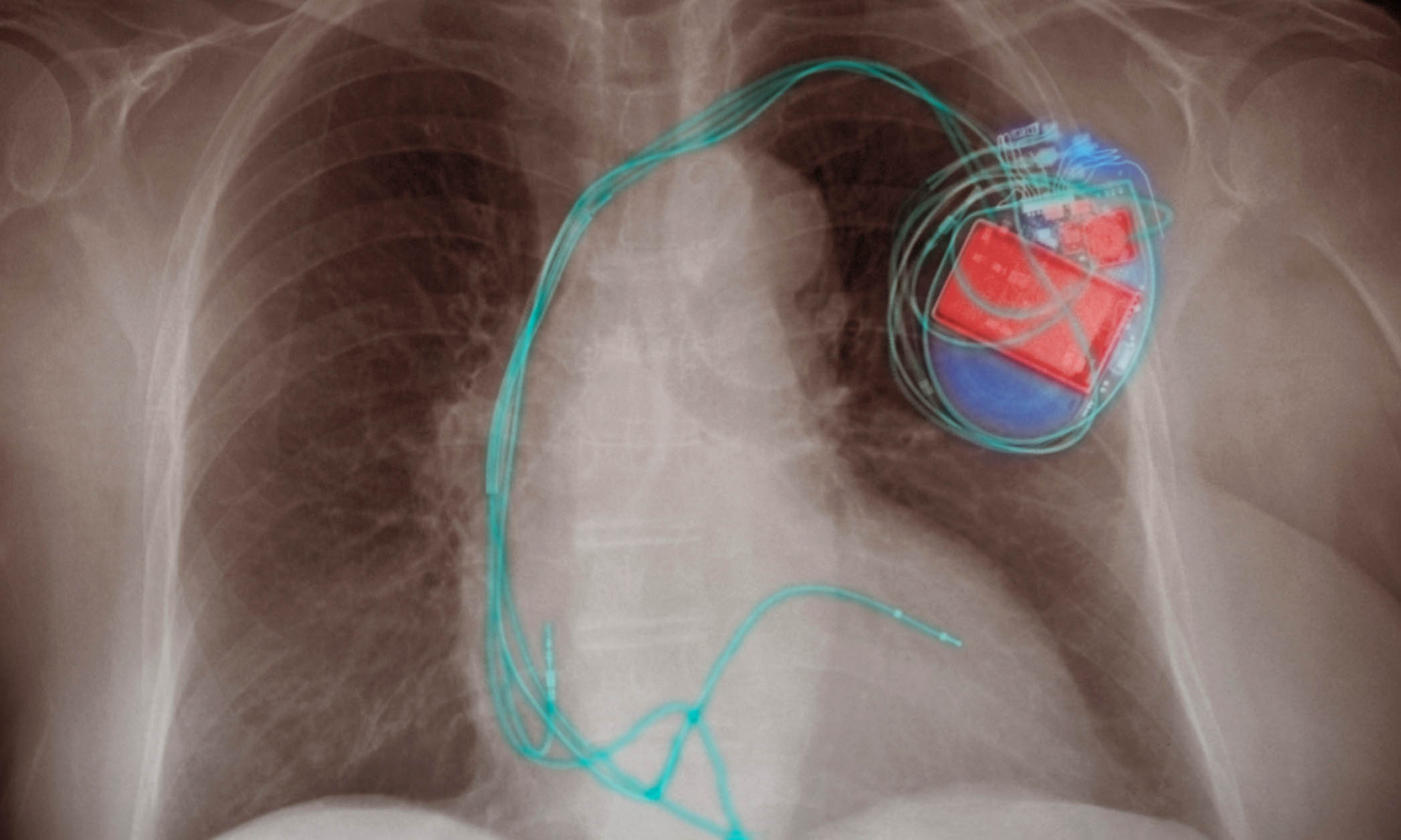 Chest X-ray showing an implanted paCemaker