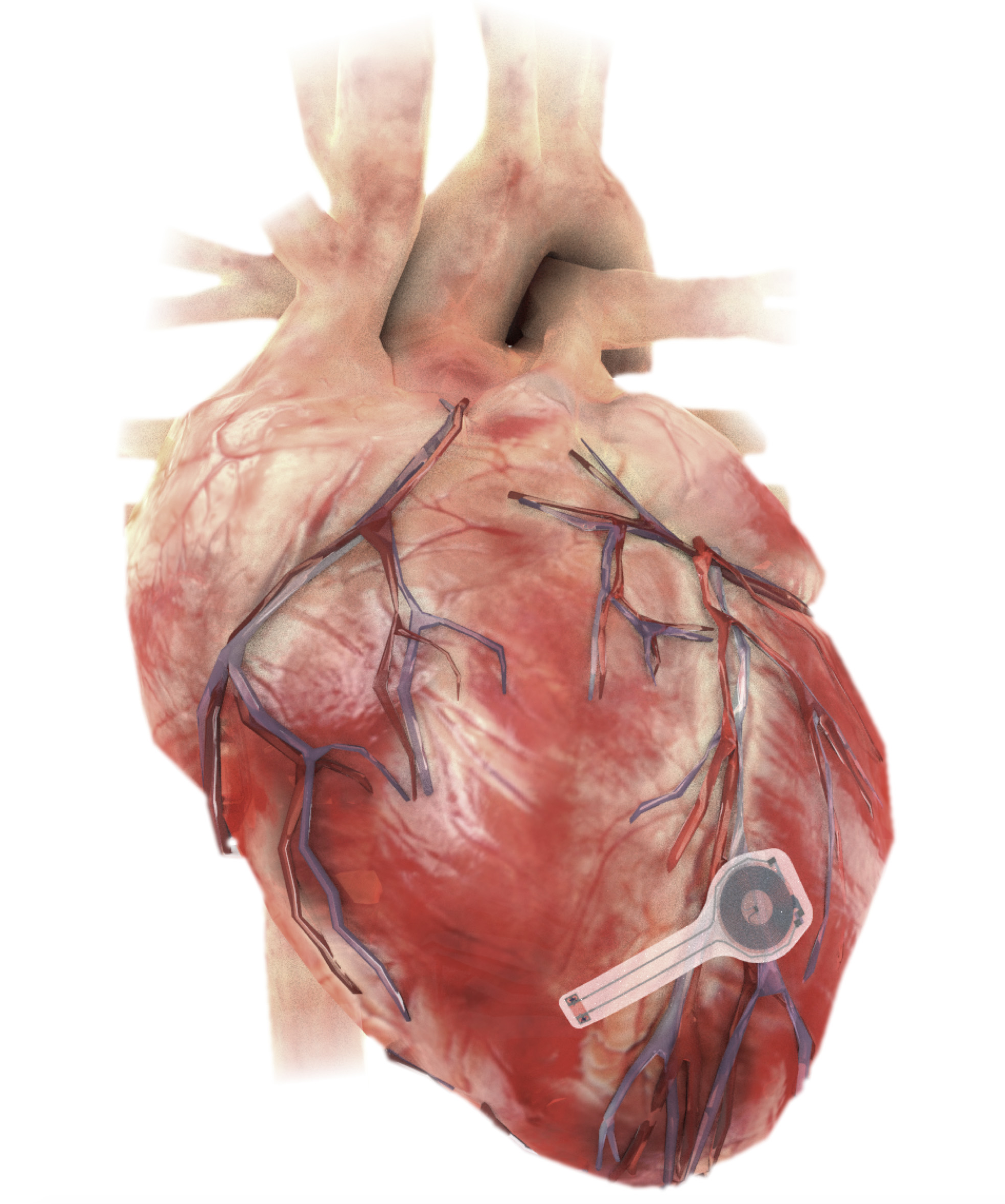 device on heart clean – source Northwestern University